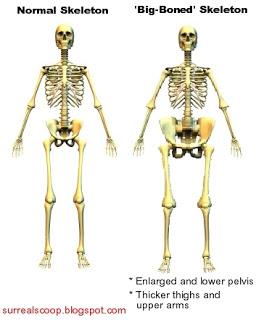 compare-big-bone-front-l.jpg