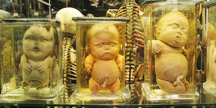 dead babies in jars.jpg