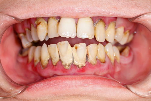 Dental-plaque-the-Good-the-Bad-the-Ugly.jpg