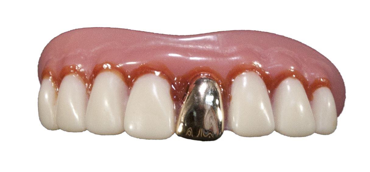 Hillbilly teeth 2.jpg