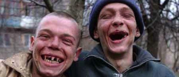 Hillbilly teeth.jpg